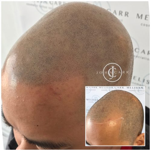 Scalp MicroPigmentation Melissa Carr Cosmetic Tattooing 305