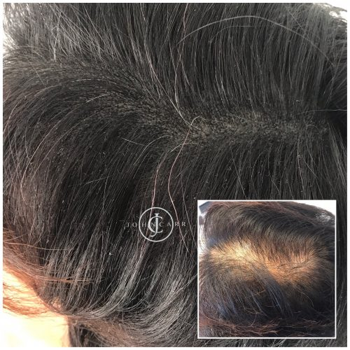 Scalp MicroPigmentation Melissa Carr Cosmetic Tattooing 308