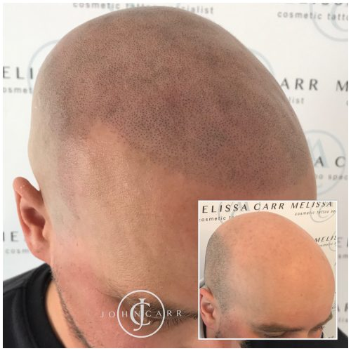 Scalp MicroPigmentation Melissa Carr Cosmetic Tattooing 320