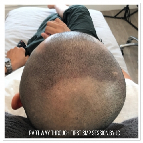 Scalp MicroPigmentation by Melissa Carr Cosmetic Tattooing 10