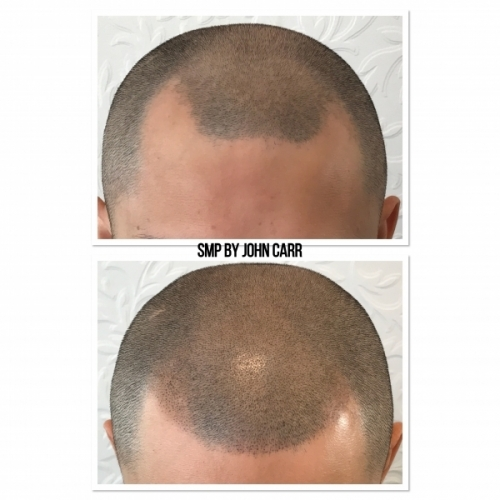 Scalp MicroPigmentation by Melissa Carr Cosmetic Tattooing 11
