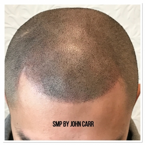 Scalp MicroPigmentation by Melissa Carr Cosmetic Tattooing 9
