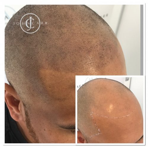 Scalp MicroPigmentation by Melissa Carr  Cosmetic Tattooing d