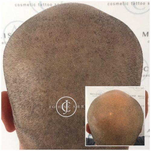 Scalp MicroPigmentation by Melissa Carr  Cosmetic Tattooing e