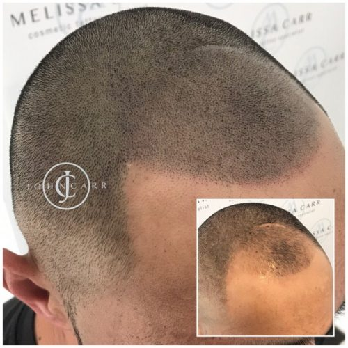 Scalp MicroPigmentation by Melissa Carr  Cosmetic Tattooing f