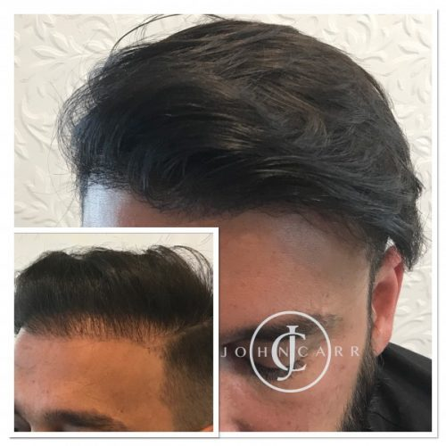 Scalp MicroPigmentation by Melissa Carr Cosmetic Tattooing jc10