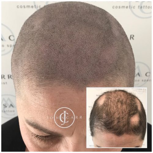 Scalp MicroPigmentation Melissa Carr Cosmetic Tattooing 323
