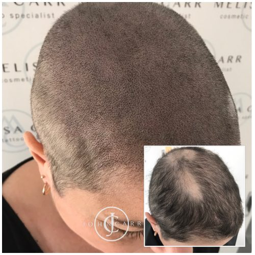 Scalp MicroPigmentation Melissa Carr Cosmetic Tattooing 325