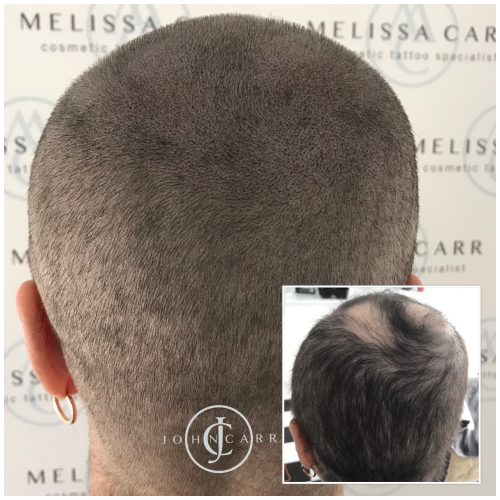 Scalp MicroPigmentation Melissa Carr Cosmetic Tattooing 326