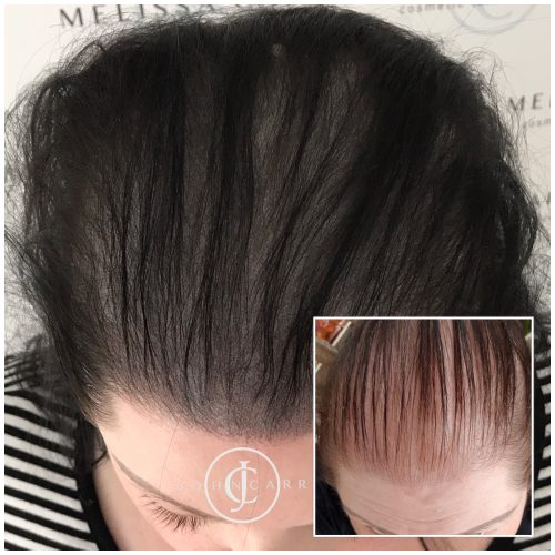 Scalp MicroPigmentation Melissa Carr Cosmetic Tattooing 328