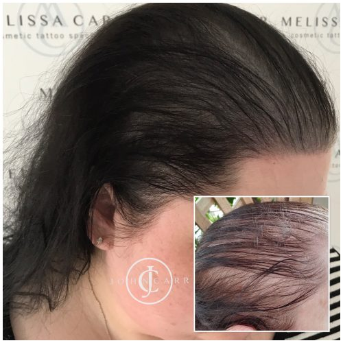 Scalp MicroPigmentation Melissa Carr Cosmetic Tattooing 329