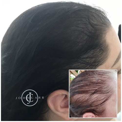 Scalp MicroPigmentation Melissa Carr Cosmetic Tattooing 330