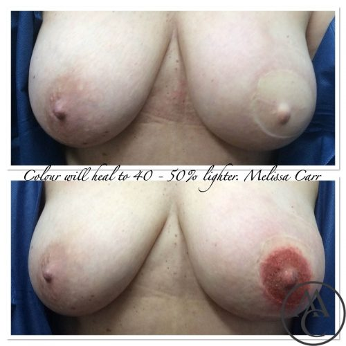 3D-Medical-Tattooing-Nipple-Areola-Breast-Tattooing-Melissa-Carr-Cosmetic-Tattooing