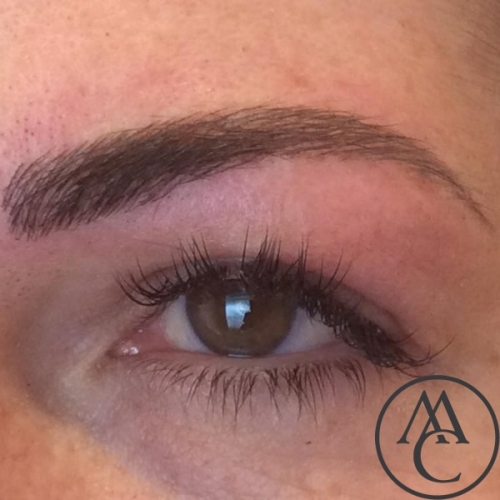 Eyebrows-Costmetic-Tattooing