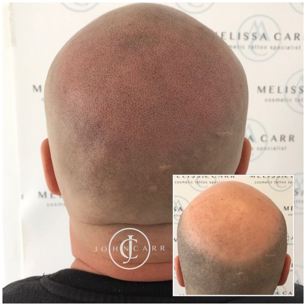 Male hair loss treatment - Melissa Carr Cosmetic Tattooing