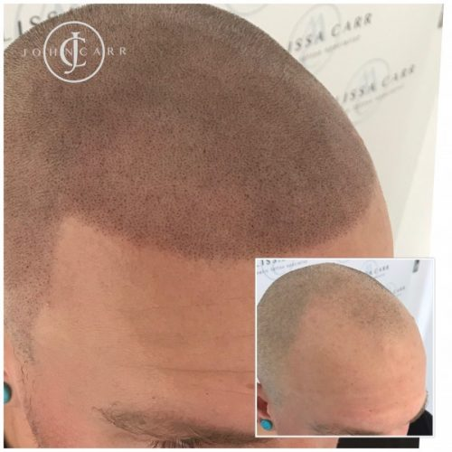 Melissa Carr Cosmetic Tattooing Scalp MicroPigmentation dd