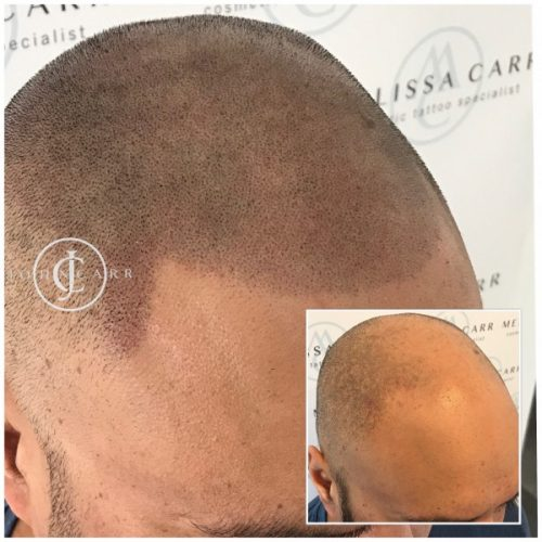 Scalp MicroPigmentation Melissa Carr Cosmetic Tattooing 303