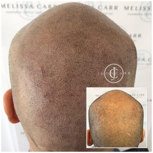 Scalp MicroPigmentation Melissa Carr Cosmetic Tattooing 306