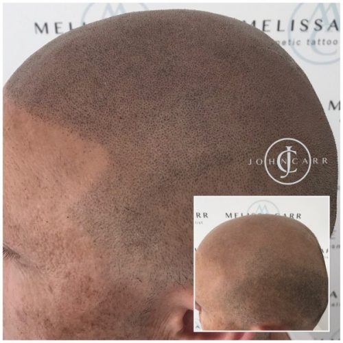 Scalp MicroPigmentation Melissa Carr Cosmetic Tattooing 307