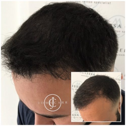 Scalp MicroPigmentation Melissa Carr Cosmetic Tattooing 314