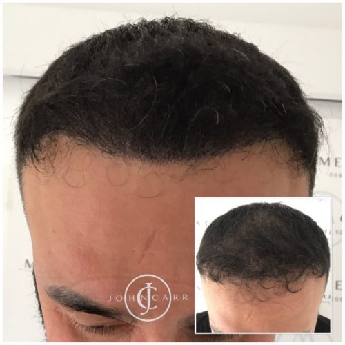 Scalp MicroPigmentation Melissa Carr Cosmetic Tattooing 316