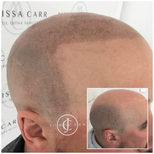 Scalp MicroPigmentation Melissa Carr Cosmetic Tattooing 321