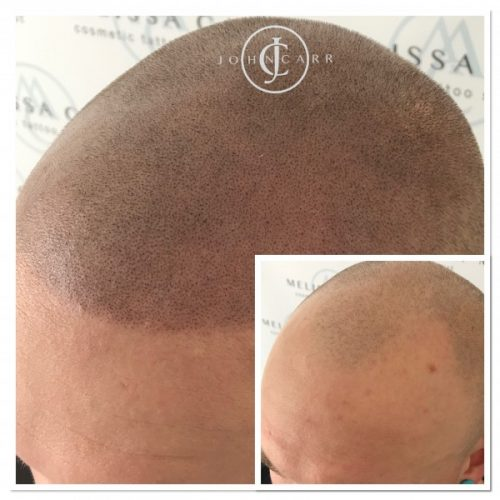 Scalp MicroPigmentation by Melissa Carr  Cosmetic Tattooing b