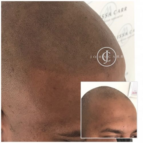 Scalp MicroPigmentation by Melissa Carr  Cosmetic Tattooing c