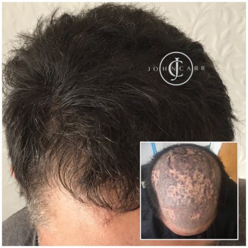 Scalp MicroPigmentation by Melissa Carr Cosmetic Tattooing k