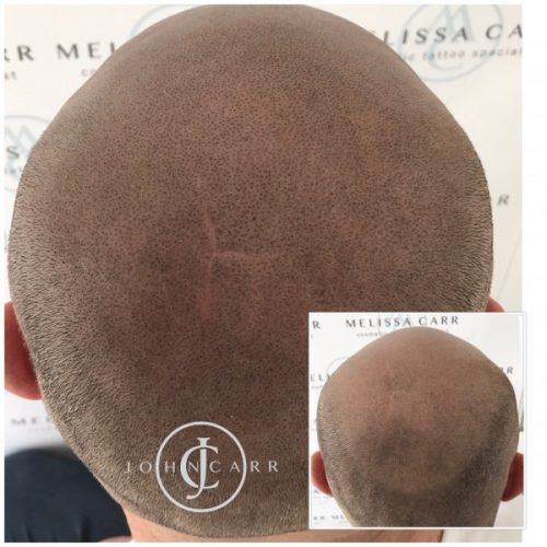 Melissa Carr Cosmetic Tattooing Scalp MicroPigmentation aa