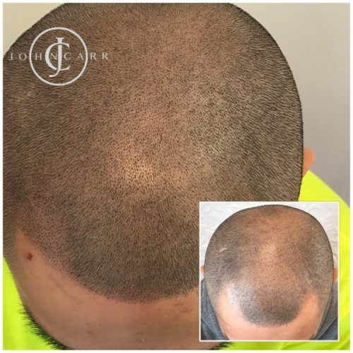 Melissa Carr Cosmetic Tattooing Scalp MicroPigmentation bb