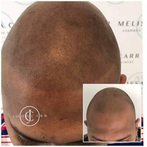 Melissa Carr Cosmetic Tattooing Scalp MicroPigmentation cc