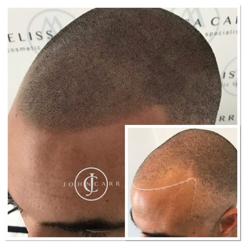 Scalp MicroPigmentation Melissa Carr Cosmetic Tattooing 301