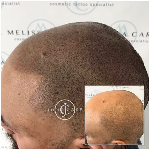Scalp MicroPigmentation Melissa Carr Cosmetic Tattooing 302