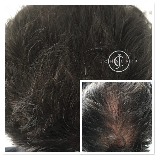 Scalp MicroPigmentation Melissa Carr Cosmetic Tattooing 309