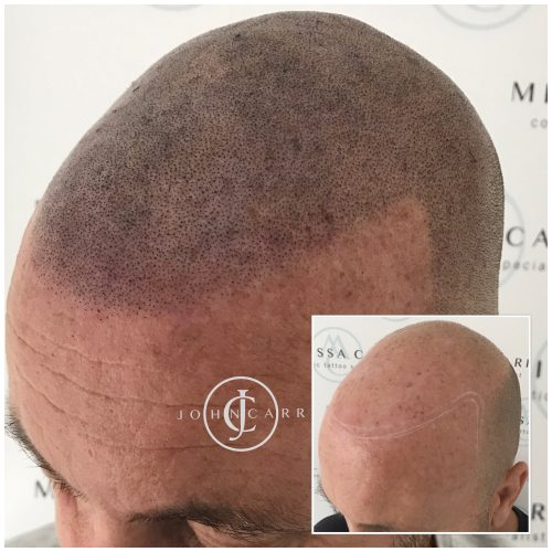 Scalp MicroPigmentation Melissa Carr Cosmetic Tattooing 311