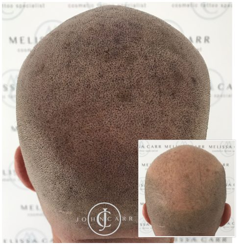 Scalp MicroPigmentation Melissa Carr Cosmetic Tattooing 312