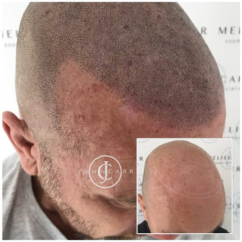 Scalp MicroPigmentation Melissa Carr Cosmetic Tattooing 313
