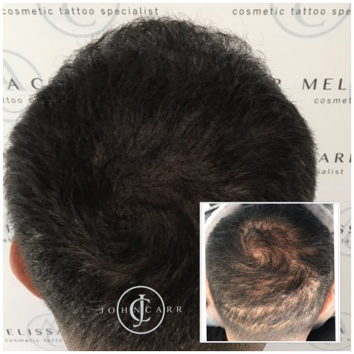 Scalp MicroPigmentation Melissa Carr Cosmetic Tattooing 315