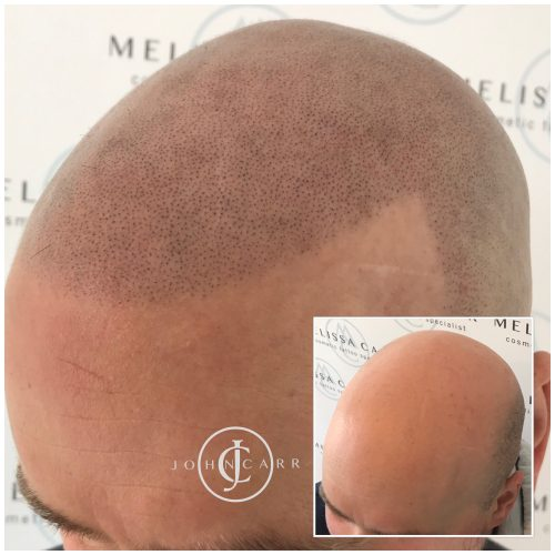 Scalp MicroPigmentation Melissa Carr Cosmetic Tattooing 317
