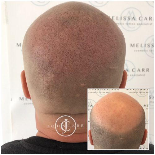 Scalp MicroPigmentation Melissa Carr Cosmetic Tattooing 318
