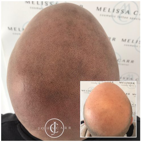 Scalp MicroPigmentation Melissa Carr Cosmetic Tattooing 319