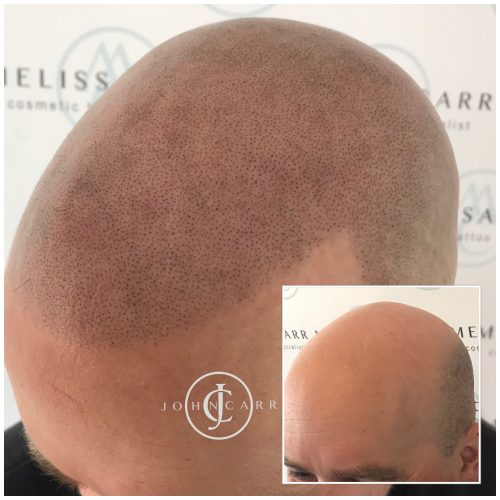 Scalp MicroPigmentation Melissa Carr Cosmetic Tattooing 322