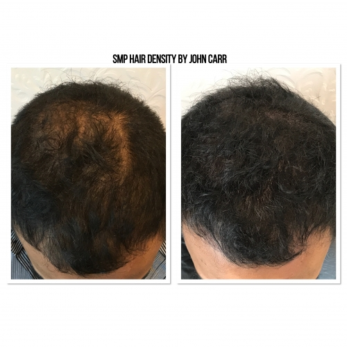 Scalp MicroPigmentation by Melissa Carr Cosmetic Tattooing 2