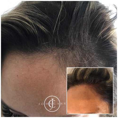 Scalp MicroPigmentation Melissa Carr Cosmetic Tattooing 324