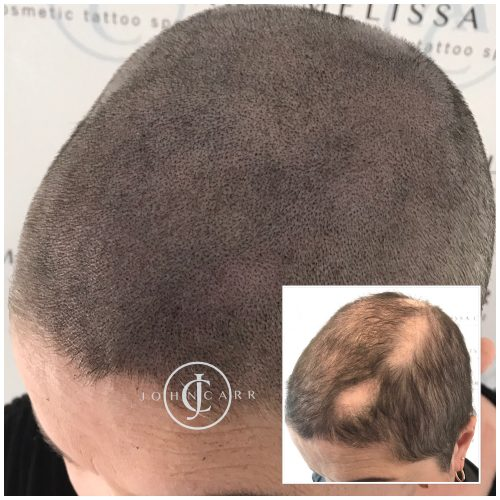 Scalp MicroPigmentation Melissa Carr Cosmetic Tattooing 327