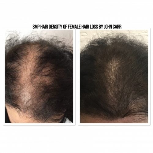 Scalp MicroPigmentation by Melissa Carr Cosmetic Tattooing 6