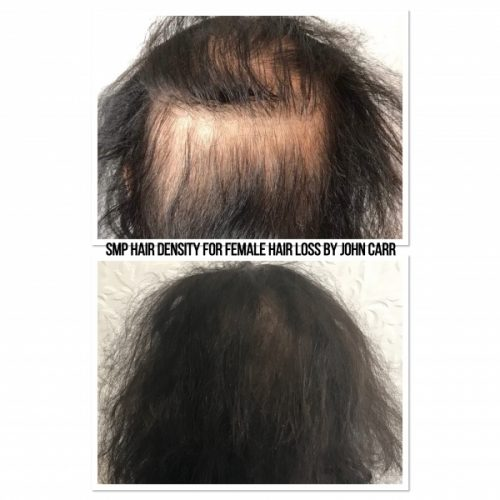 Scalp MicroPigmentation by Melissa Carr Cosmetic Tattooing 7