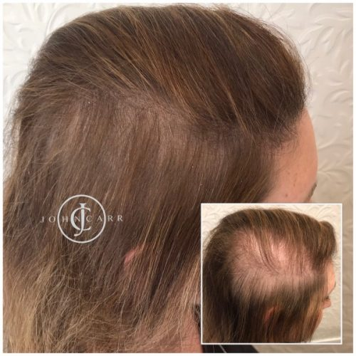 Scalp MicroPigmentation by Melissa Carr Cosmetic Tattooing g