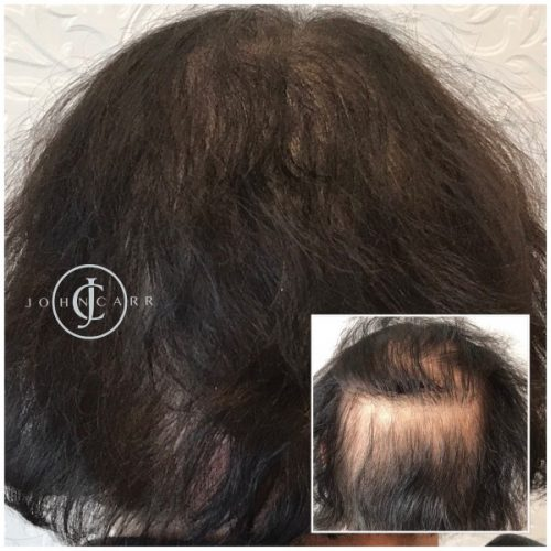 Scalp MicroPigmentation by Melissa Carr Cosmetic Tattooing h